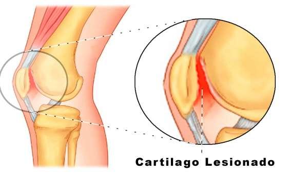 Condropatía Rotuliana Sus Síntomas Grados Y Tratamiento Que Es La Condromalacia Rotuliana Grado 3